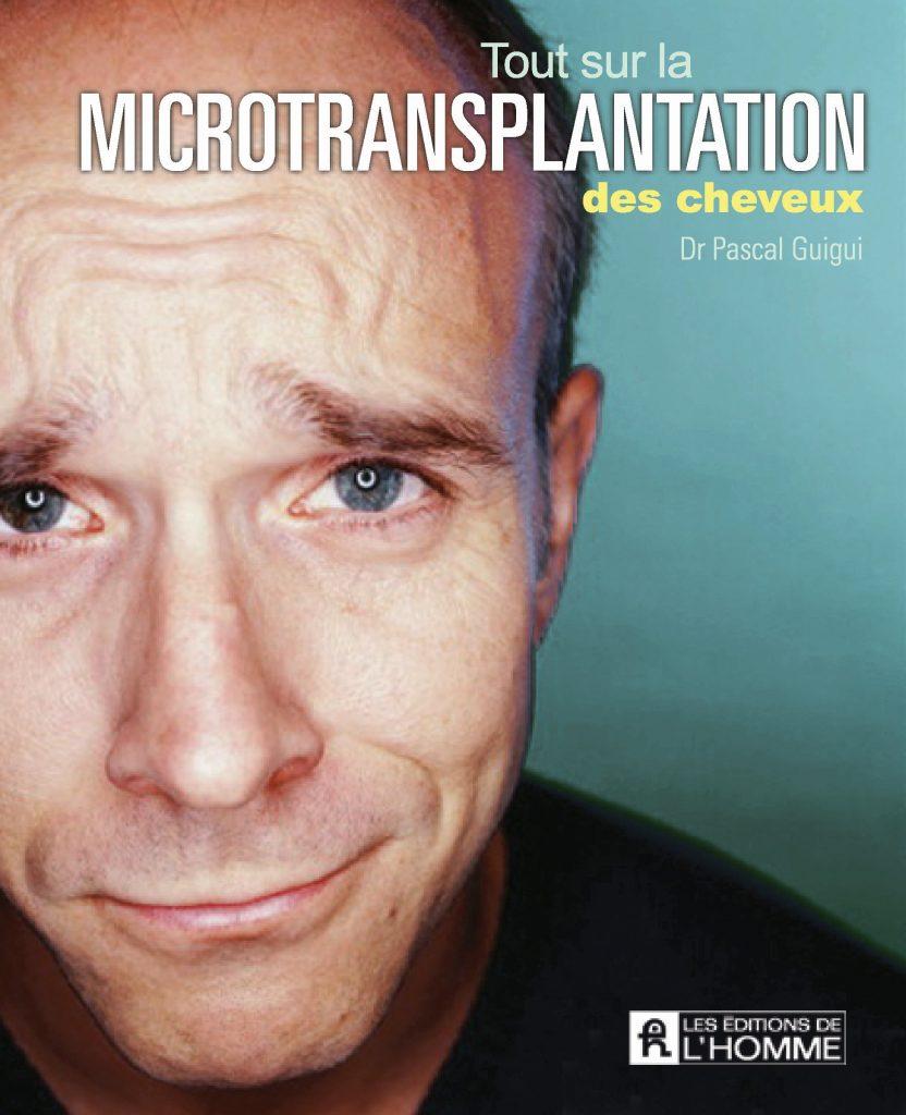 """Photo de la couverture du livre """"tout sur la microtransplantation des cheveux"""" par le docteur Pascal Guigui, spécialiste de la greffe de cheveux"""