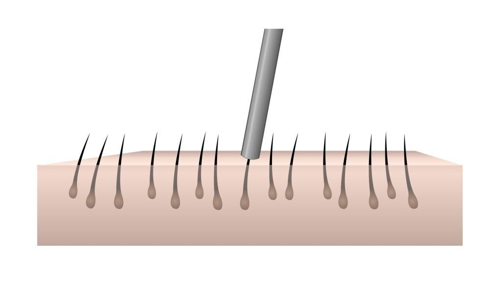 Illustration d'un extraction d'un follicule capillaire