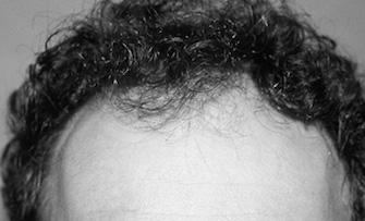 Cliché d'un patient du Docter Pascal Guigui avant une greffe capillaire
