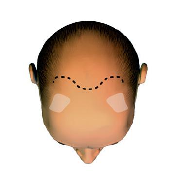 La calvitie avancée avec perte de toute la chevelure sur le sommet du crâne