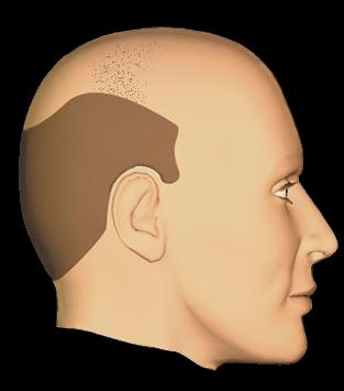 Stratégie de traitement FUS 4000 - implantation capillaire par le DR Pascal Guigui