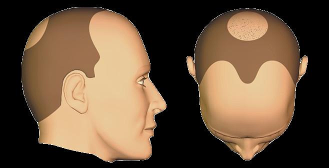 Zone frontale et/ ou tonsure traitée en FUS 2000